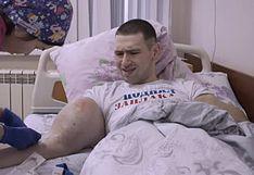 'Popeye Ruso' salva de morir tras operarse los biceps [FOTO]