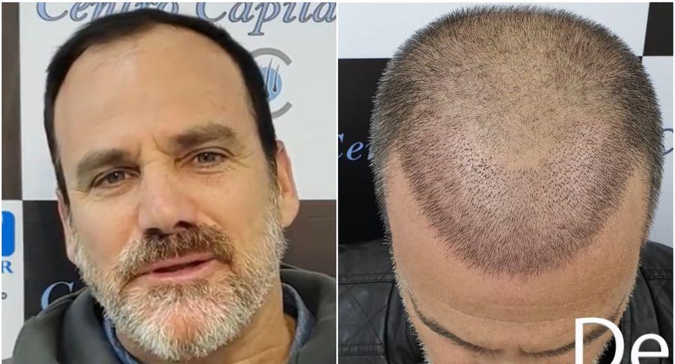 Omar Ruiz de Somocurcio protagonista de radical cambio físico tras implante capilar | VIDEO Facebook