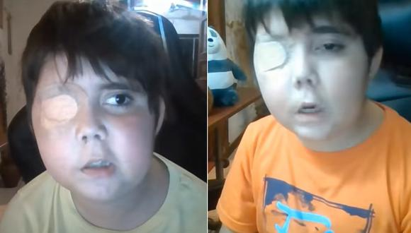 Niño es apoyado por gamers en Youtube para superar el tumor cerebral que padece (Foto: Captura Youtube Tomiii11).