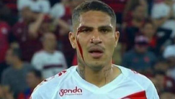 Internacional vs. Flamengo   Paolo Guerrero terminó ensangrentado, reclamo al árbitro con ofensa y fue expulsado   FOTOS