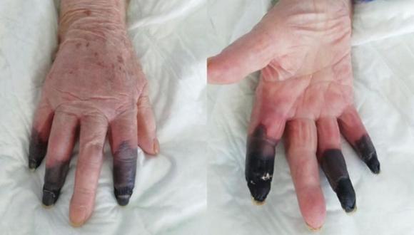 Mujer se contagia de COVID y sufre gangrena.